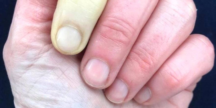 Ünlü sunucunun parmağı görenleri şaşırttı!