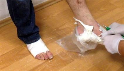 Kokaini ayağına alçı yapan kurye yakalandı