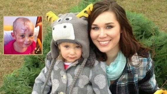 Kızını saldıran pitbullu ısırdı