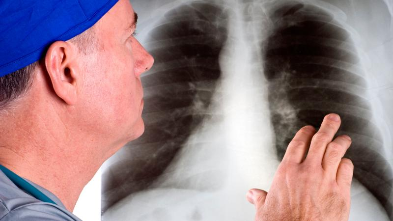 Akciğer kanserinde yeni umut