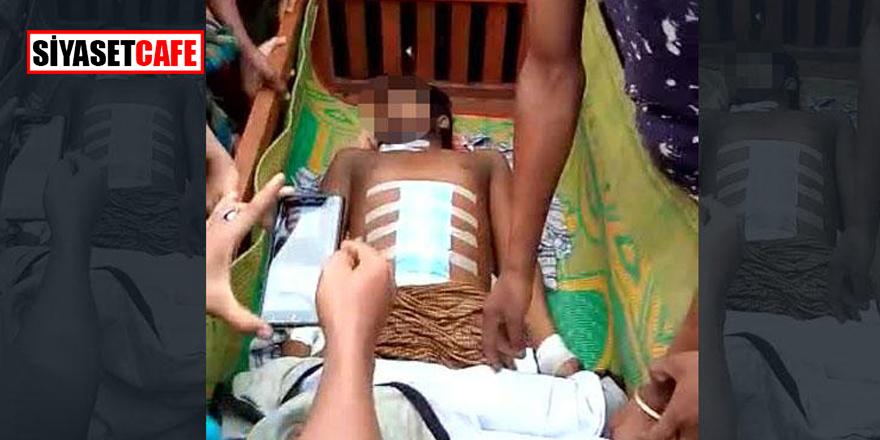 Arakanlı Müslüman gencin hastanede organları çalındı