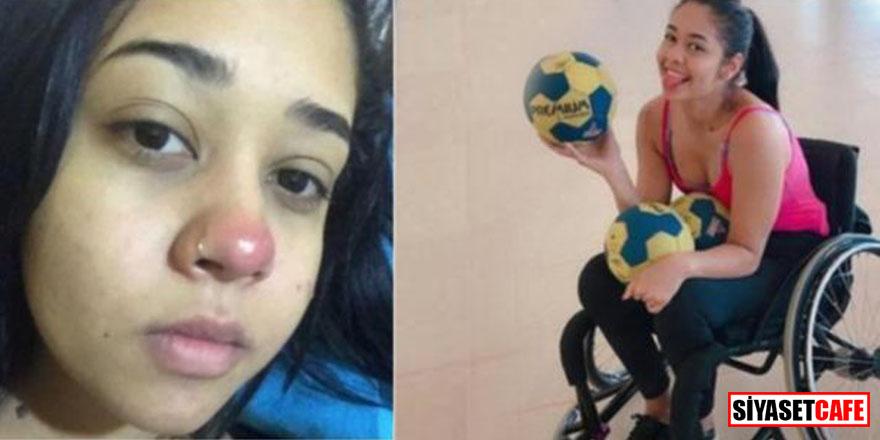 20 yaşındaki genç kız piercing yüzünden sakat kaldı