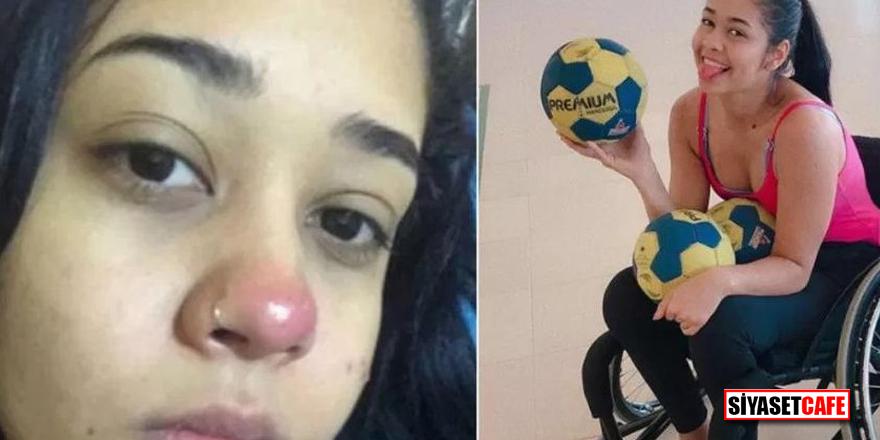 Piercing taktıran genç kızın hayatı karardı