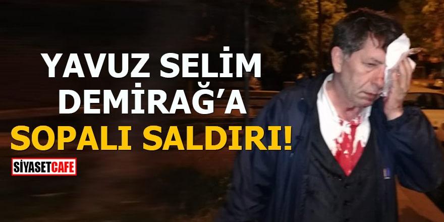 Yeniçağ Gazetesi yazarı Yavuz Selim Demirağ sopalı saldırıya uğradı