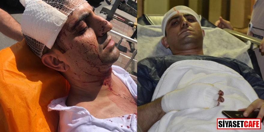 Türk askerine 'eşek' diyen Akitçi'ye saldıranlar tahliye edildi