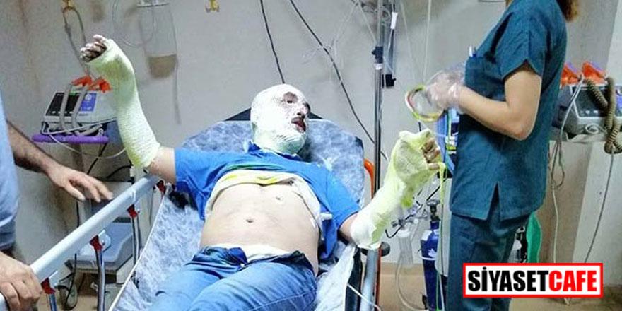 MHP ilçe başkanı teknesinde yandı