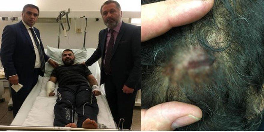 Almanya'da dehşet: Polis Türk vatandaşını öldüresiye dövüp sokağa bıraktı
