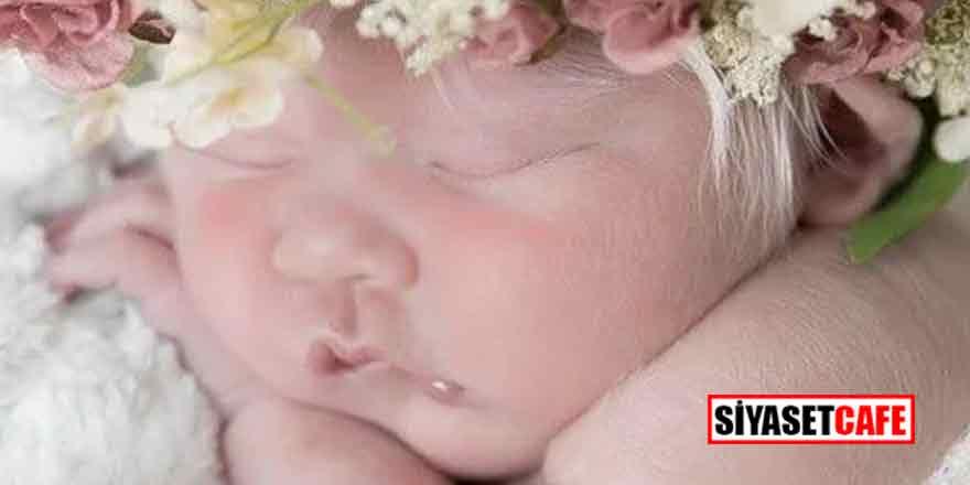Esmer çiftin bebekleri bembeyaz doğunca ortalık karıştı!