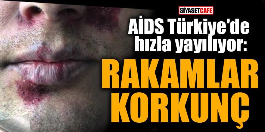 AİDS Türkiye'de hızla yayılıyor: Rakamlar korkunç