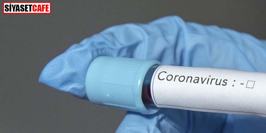 Koronavirüsün yeni bir belirtisi daha çıktı!