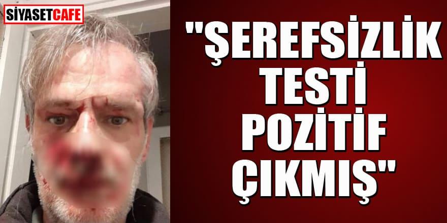 MHP'li Erkan Akçay: Şerefsizlik testi pozitif çıkmış