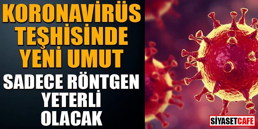 Koronavirüs teşhisinde röntgen mücizesi!