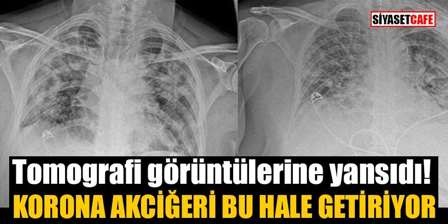 Tomografi görüntülerine yansıdı! Korona akciğeri bu hale getiriyor