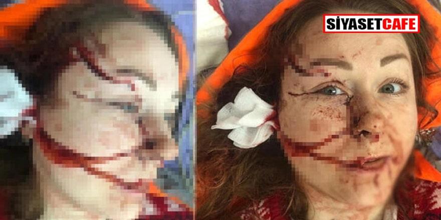 Yüzü falçatayla parçalanan Ukraynalı Hanna'nın acıklı hikayesi