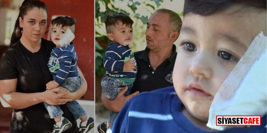 Antalya'da pitbull dehşeti! 11 aylık bebeğin yanağını ve kulağını kopardı