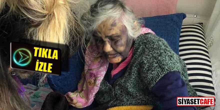 Zonguldak'ta yürek sızlatan görüntü; zavallı kadını bu hale getirmişler!