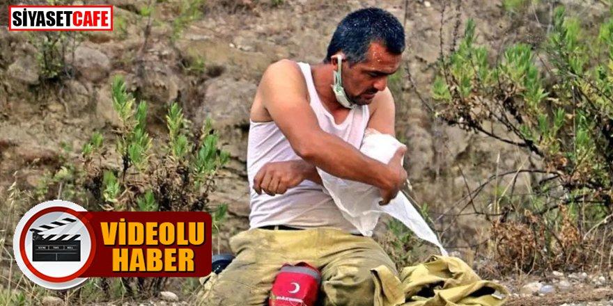Yaralanan kolunu kendi sarıp, bir ağaç daha kurtarabilmek için görevine koştu